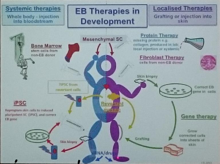 EB的治療發展示意圖